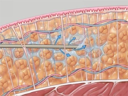 Хирургическое похудение помогает больным диабетом 2 типа