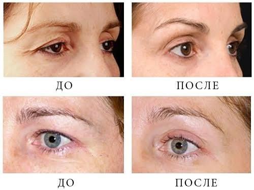 Удаление темных кругов под глазами операция