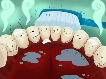 Что будет с зубами, если не фторировать воду